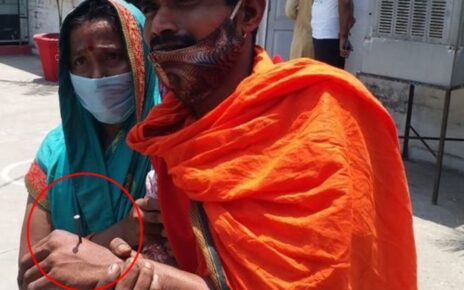 Self-inflicted wound to avoid arrest, accuses up police